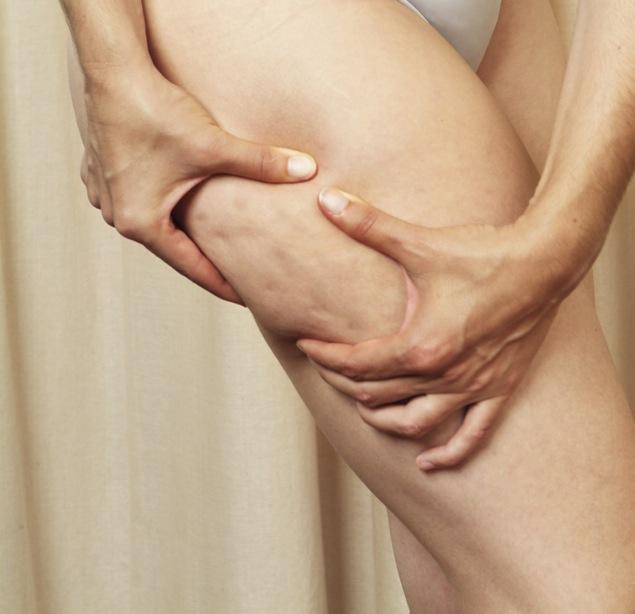 celulitis y pies de naranja, cómo combatirla