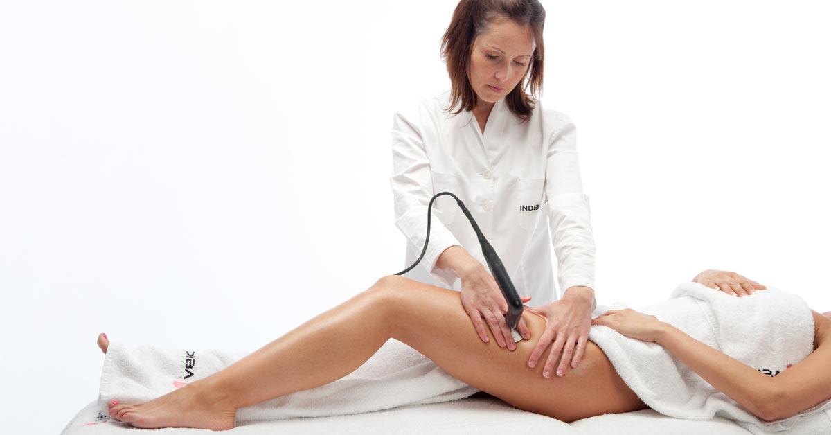 Mercedes Patallo - Tratamiento corporal con INDIBA  - Mercedes Patallo