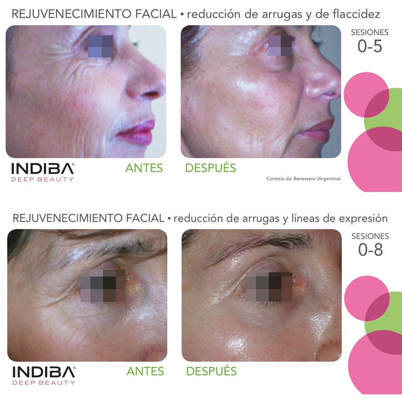 Mercedes Patallo - Vídeo Tratamiento INDIBA Deep Beauty Facial - Mercedes Patallo